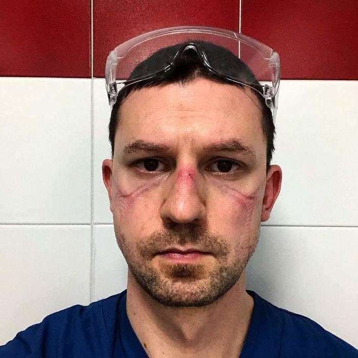 """""""Non amo i selfie. Ieri, però, ho scattato questa foto. Dopo 13 ore in terapia intensiva. Non sono un eroe. Sono una persona normale"""""""