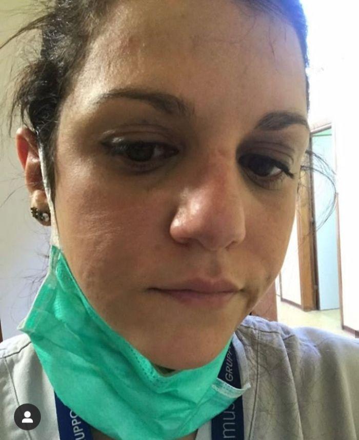 Infermiera dopo ore di lavoro in terapia intensiva